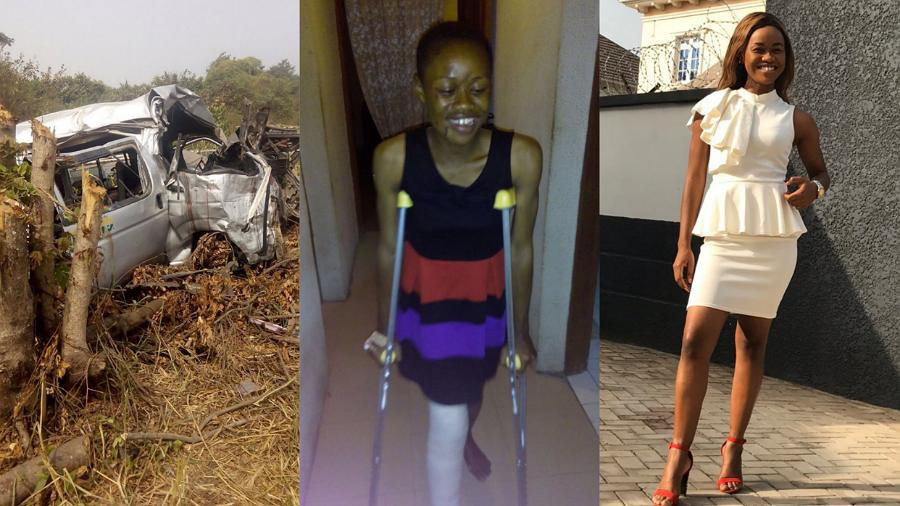 Nigerian lady shares her miraculous experience after badly damaging her leg in a motor accident